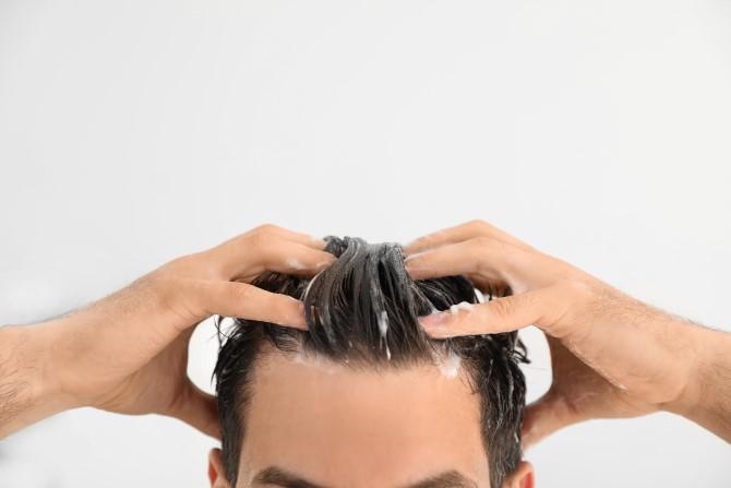 Behandeling voor psoriasis op de hoofdhuid